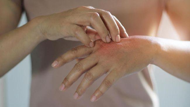Tips Mengatasi Iritasi Kulit Tanpa Obat-obatan
